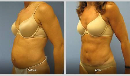 Variations in Tummy Tuck Surgery for NJ Patients