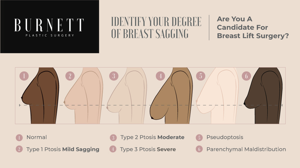 Women considering a breast lift can determine their degree and type of sagging with help from Westfield, NJ's Burnett Plastic Surgery.