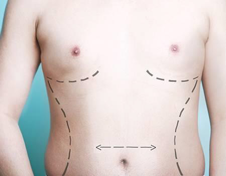 How Does Male Breast Reduction Work?